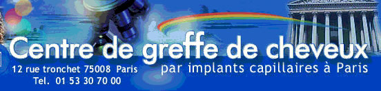 implants capillaires